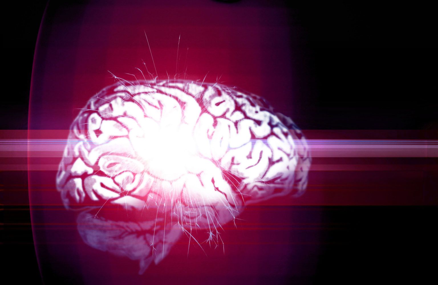 Scientists Have Created Brain Implants that Could Boost Our Memory by Up to 30%