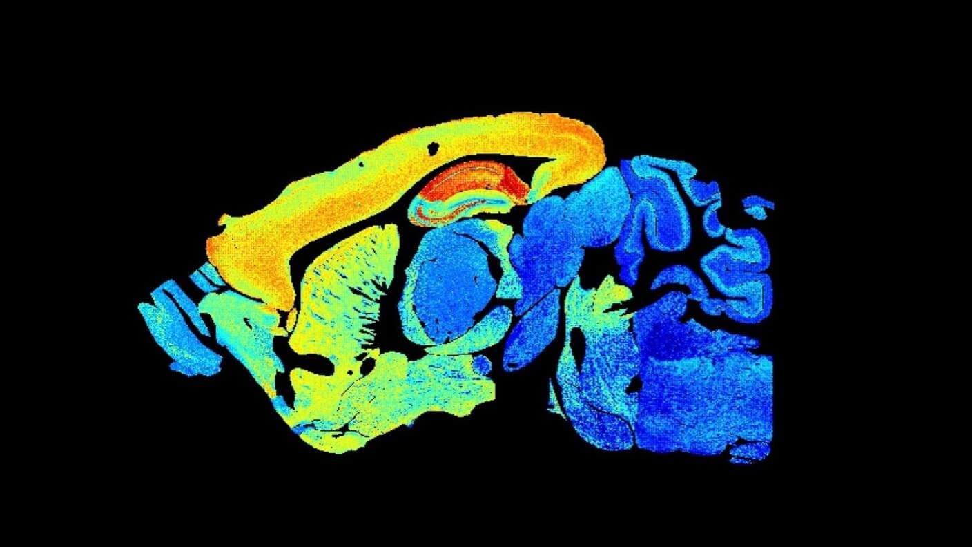 Amazingly Detailed Map Reveals How the Brain Changes With Aging